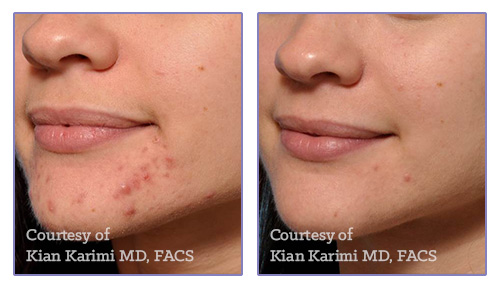 2 Treatments with Microneedling + PRP
