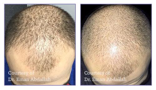 1 Treatment with CosmoPen & MesoMedica MesoHairGro® Serum